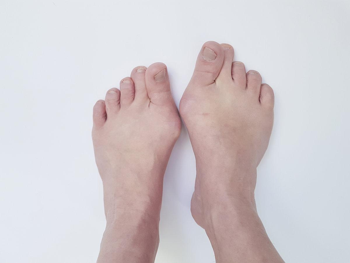 大脚骨有哪些并发症?上海虹桥医院龙德刚为您介绍